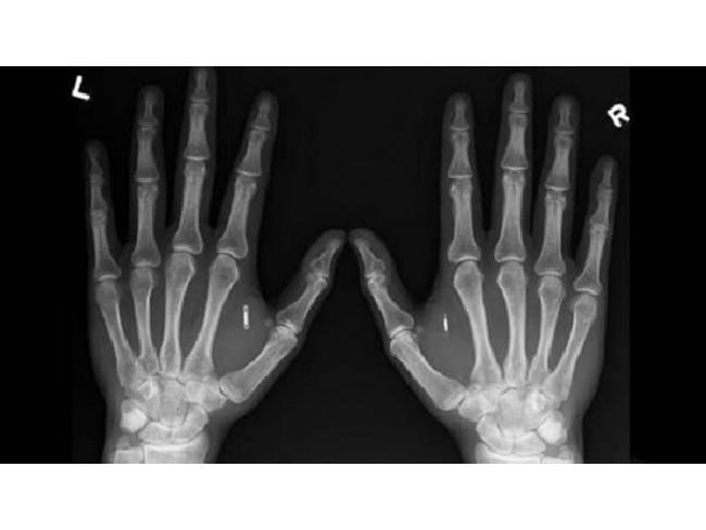 ไม่ต้องใช้บัตรพนักงานแล้ว! เมื่อบริษัทจากสวีเดนนำชิป RFID มาฝังในร่างกายพนักงาน สำหรับการระบุตัวตน