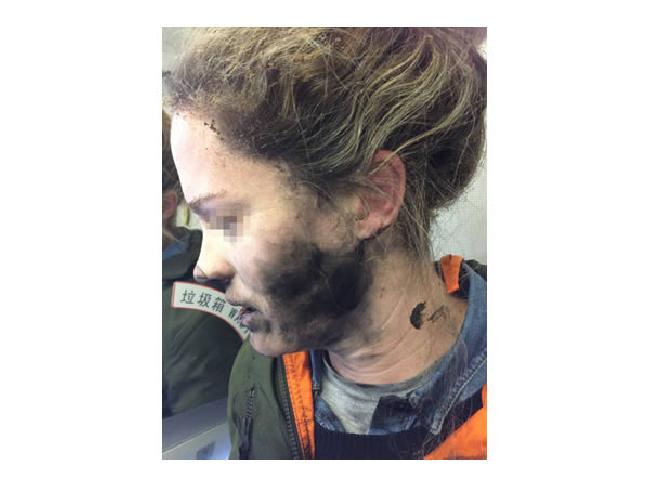 เตือนภัย : แบตเตอรี่หูฟังระเบิดขณะหลับ คราวนี้เหตุเกิดบนเครื่องบิน
